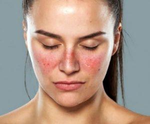 Penyebab daiu Penyakit Lupus